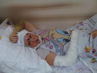 Мужчина жестоко избил бывшую сожительницу в Уссурийске