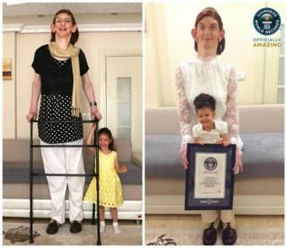 11-классница из Турции стала самой высокой девушкой на планете