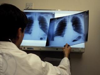 показатель заболеваемости туберкулезом в Уссурийске выше нормы